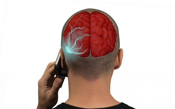 picture showing how Cell Phone Radiation Affects your Brain's Activity when you are talking on phone